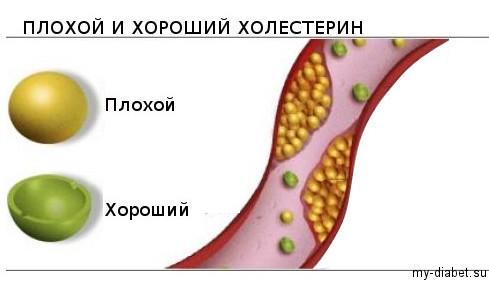 повышен хороший холестерин что делать